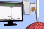 Saniyede kanseri doğru teşhis eden el cihazı